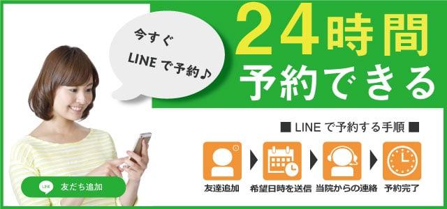 24時間予約できる LINE予約
